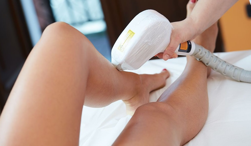 upper leg ipl hair removal